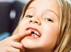 Pielęgnacja mlecznych zębów dziecka