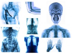 Ból kręgosłupa współczesne dolegliwości